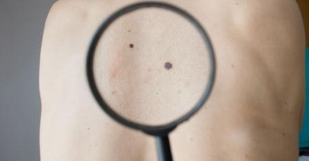 Tudnivalók a bőrrák kezeléséről